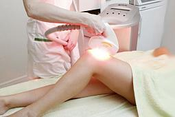 ELOS™ epilatsioon (SYNERON) Fotonoorendamine
