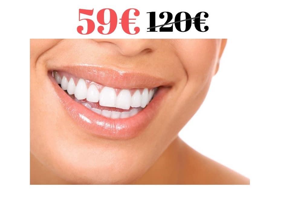 Фотоотбеливание зубов 59€ (норм. цена 120€)